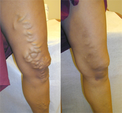 Home Remedy For Short Leg Syndrome